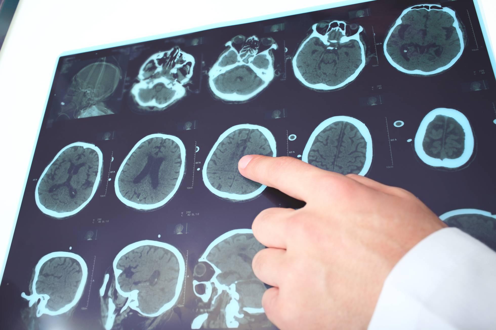 Claves esclerosis múltiple